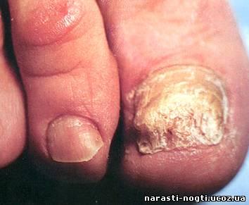 Грибковые заболевания кожи и ногтей относятся к группе инфекционных...