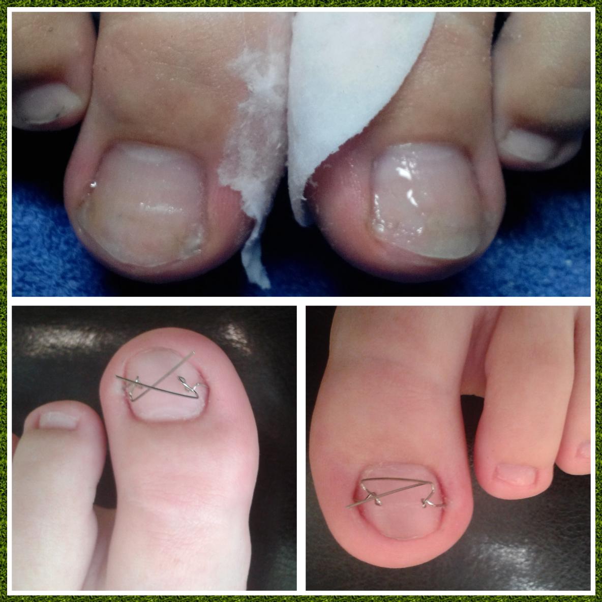 Лечение вросшего ногтя педикюр